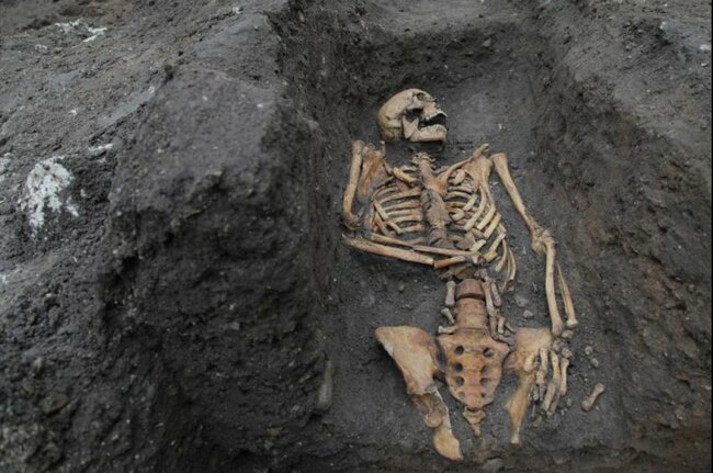 Survey of skeletal trauma reveals inequality among Cambridge's medieval residents