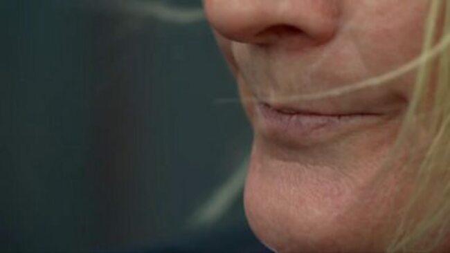 Saving my teeth damaged by years of domestic abuse